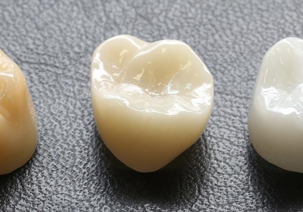 かい歯科の「高品質セラミック治療」が選ばれる理由