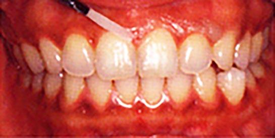 ホワイトニング施術方法01 ワックスを歯肉に塗り、歯肉を保護