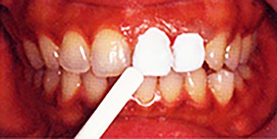 ホワイトニング施術方法02 歯の表面にペーストを塗る
