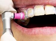 TiONの流れ 02.歯面の掃除