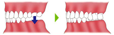 抜けた歯を放置するリスク