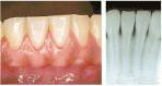 かい歯科の歯周病治療 軽度の歯周病