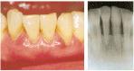 かい歯科の歯周病治療 中程度の歯周病