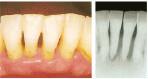 かい歯科の歯周病治療 重度の歯周病