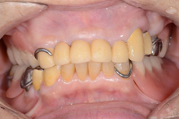 「キレイな入れ歯とかぶせもので美味しく食べて楽しく笑おう!」 AFTER画像