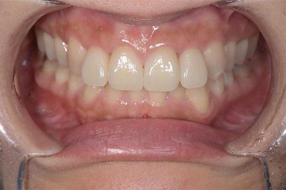 「オールセラミッククラウンで思いっきり笑える綺麗な前歯を手に入れよう」 AFTER画像