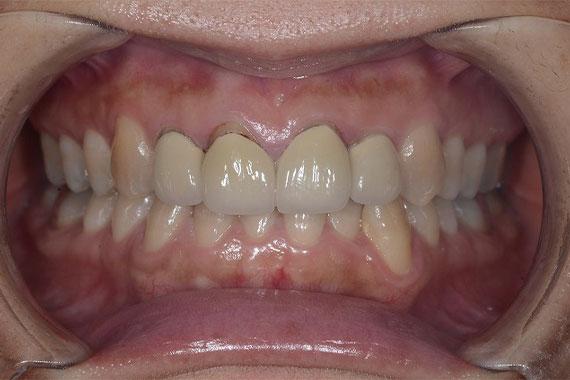 「オールセラミッククラウンで思いっきり笑える綺麗な前歯を手に入れよう」 BEFORE画像