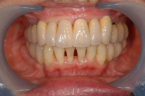 「入れ歯からインプラントに切り替えて何でもおいしく食べられる歯に!」 AFTER画像