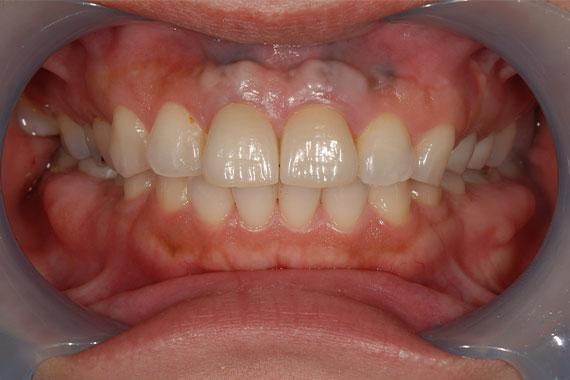 「前歯のインプラントで審美&機能どちらもUP」 AFTER画像