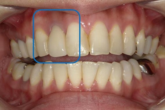「セラミックを入れ替えて、より自然で美しい歯に」 AFTER画像
